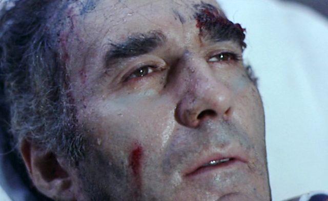 Nahaufnahme des Gesichts des schwer verletzten Pierre Bérard (gespielt von Michel Piccoli).